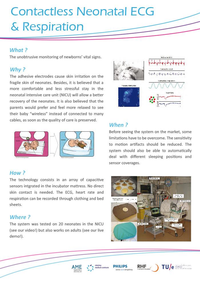 Samenwerking Enemo project RHF, Philips, TU Eindhoven en MMC